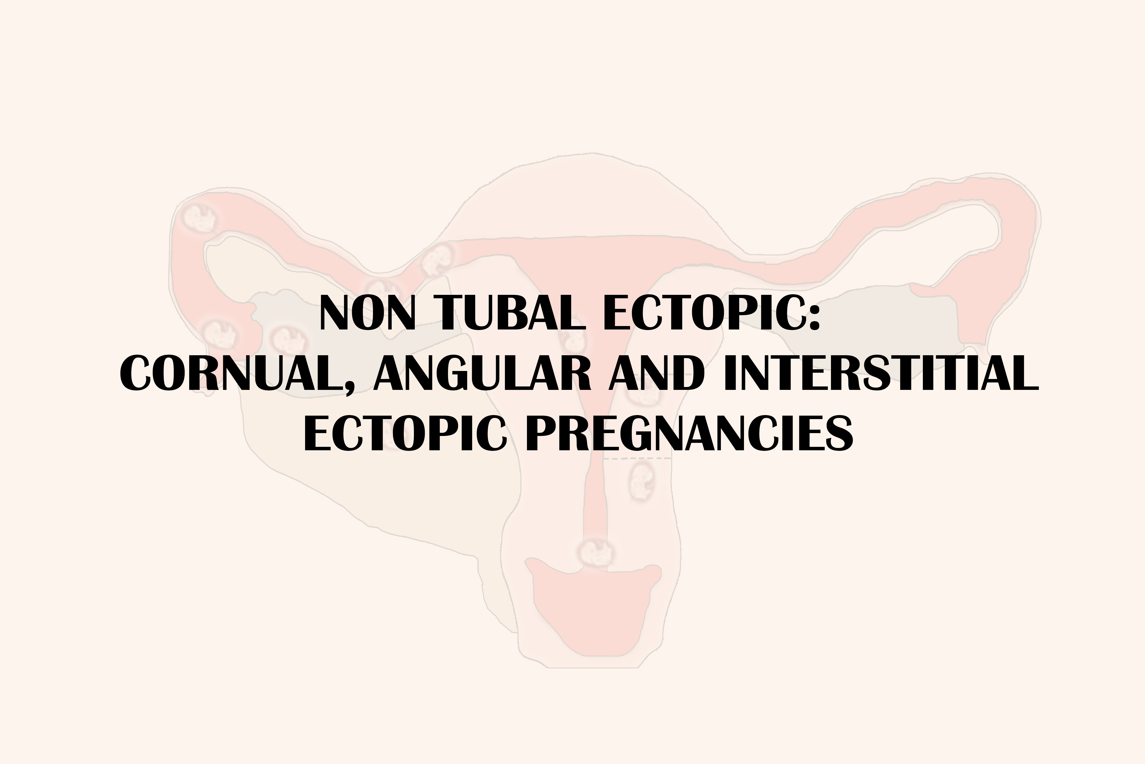 NON TUBAL ECTOPIC PREGNANCY: CORNUAL, ANGULAR AND INTERSTITIAL ECTOPIC PREGNANCIES
